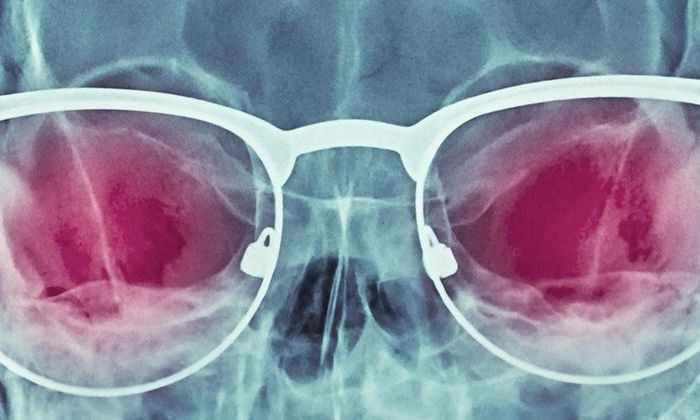 Тайная история рентгеновских очков
