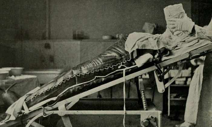 Эволюция медицины: от лоботомии до полной пересадки лица