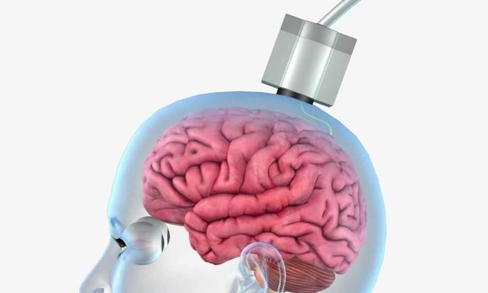 Мозговой имплантат для ввода текста