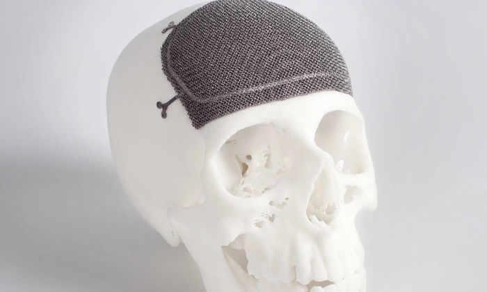 Будущее ортопедии - за 3D принтерами