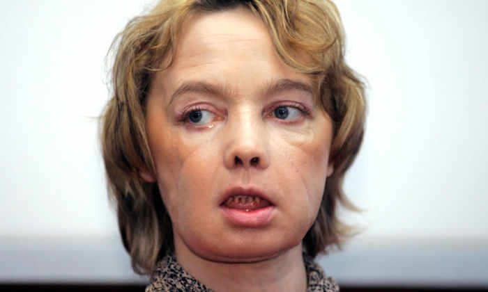 Умерла женщина, первая в мире пережившая пересадку лица