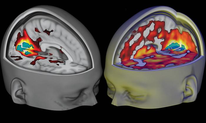Психоделические наркотики формируют другой вид сознания