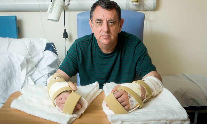 Первую в мире одновременную пересадку обеих рук провели в Англии
