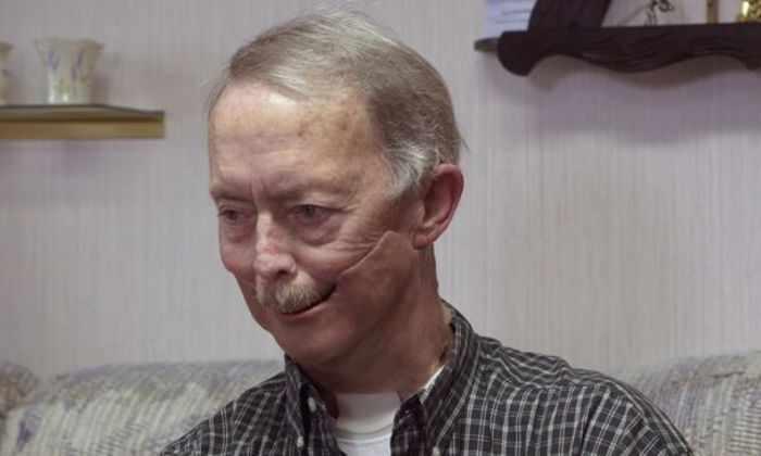 Мужчине, оставшемуся без половины лица из-за рака, напечатали новую челюсть