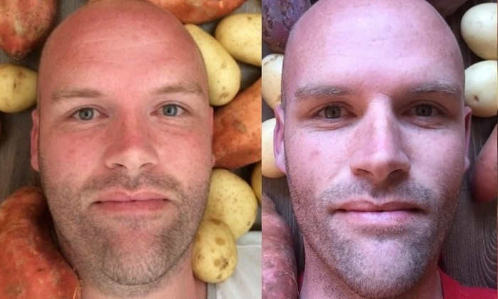 Австралиец год питался только картофелем. Похудел на 50 кг