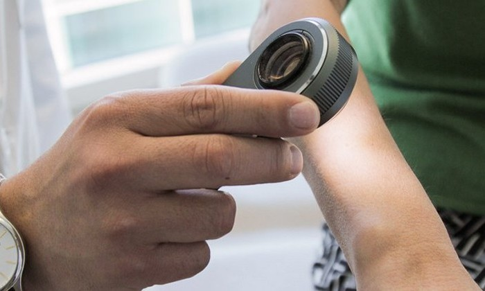 Искусственный интеллект научили определять рак кожи на уровне экспертов