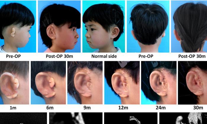Пяти китайским детям пересадили уши, выращенные из их собственной кожи