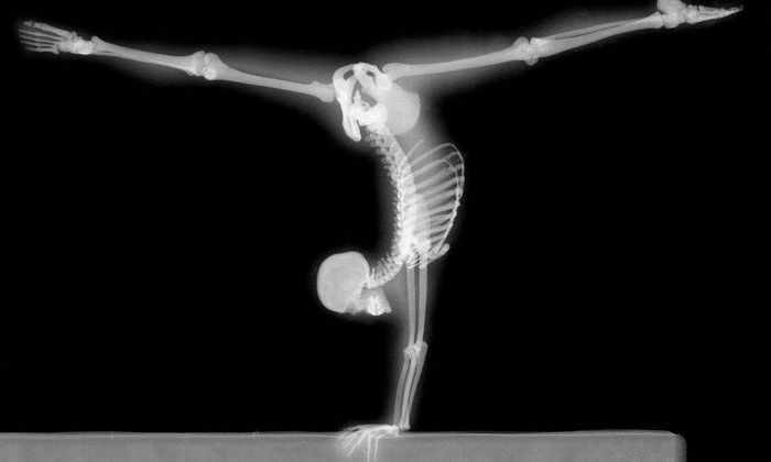 Разработан новый способ для укрепления костей космонавтов