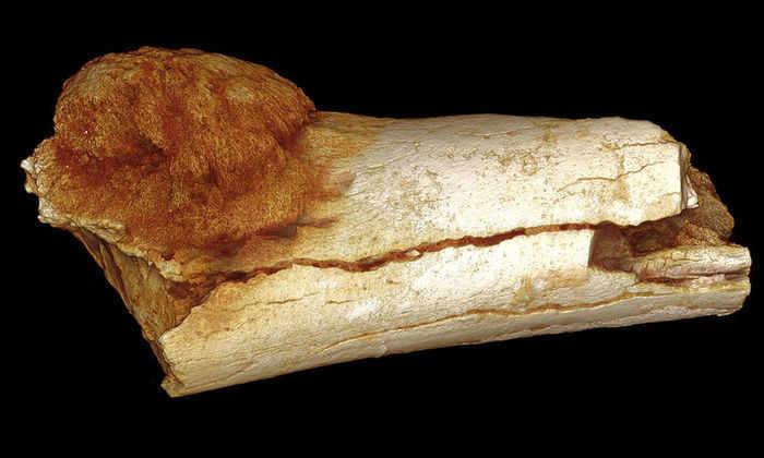 Люди страдали от рака еще 1,7 миллиона лет назад