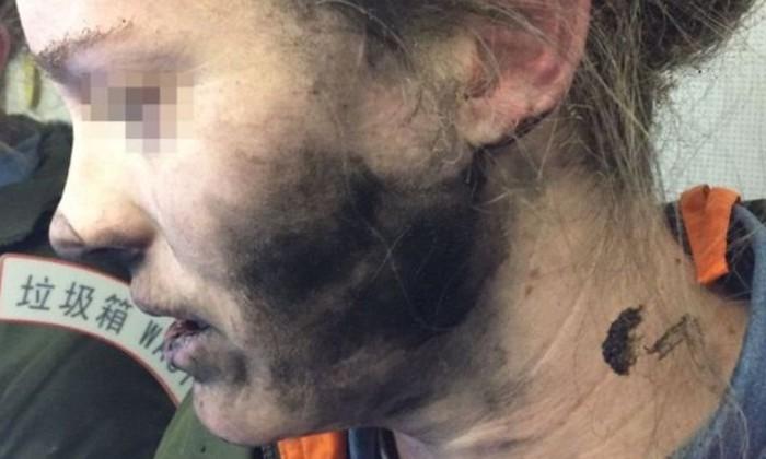Женщина, пострадавшая от взрыва наушников