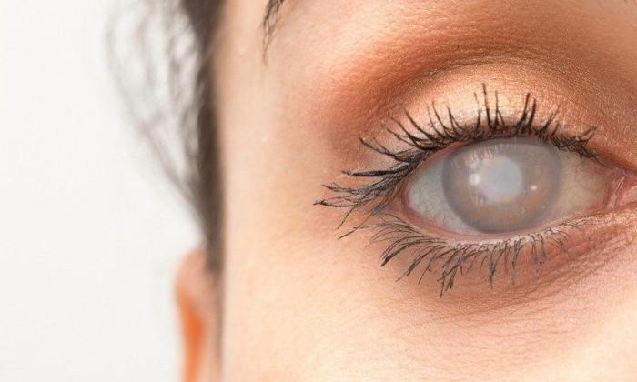 Слепота, вызванная нарушениями в гене RPE65