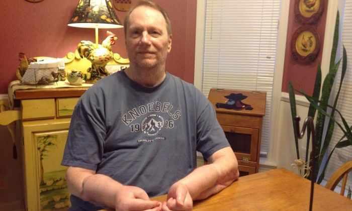 Американец хочет удалить трансплантаты обеих рук, пересаженных 7 лет назад