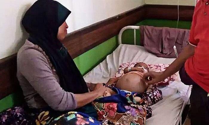 В Индонезии младенцу сделали операцию по удалению близнеца-паразита