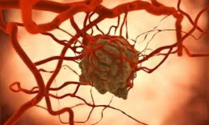 Ученые открыли эффективный способ борьбы с раком